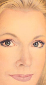 After surgery, the upper eyelids no longer droop and the skin under the eyes is smooth and firm.