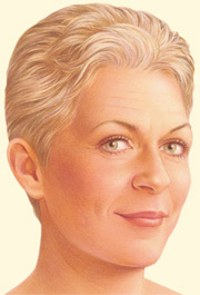 An alternative to a traditional facelift uses shorter incisions at the temples, continuing around the ear and possibly within the lower eyelids or under the upper lip.