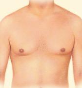 After liposuction, the patient has a flatter chest contour.