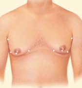n cases where gynecomastia is primarily the result of excess fatty tissue, liposuction techniques alone may be used.