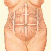Through this incision, weakened abdominal muscles are repaired and sutured and excess fat, tissue and skin is removed.