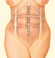Your plastic surgeon draws underlying muscle and tissue together and stitches them, thereby narrowing the waistline and strengthening the abdominal wall.