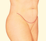 After surgery, the patient has a flatter, trimmer abdomen. Scars are permanent, but will fade with time.