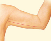 Arm lift surgery tightens loose, hanging tissue of the upper arm.