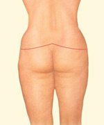 A complete lower body lift treats the buttocks, abdomen, waist, hips and thighs in one procedure.