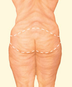 In a body lift, a circumferential incision removes an apron of loose skin and fat and tightens tissues of the buttocks, abdomen, waist, hips and thighs in one procedure.
