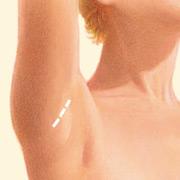 Transaxillary (underarm) Incision