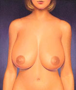 Heavy breasts can lead to physical discomfort, a variety of medical problems, shoulder indentations due to tight bra straps, and extreme self-consciousness.