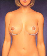 Scars around the areola, below it, and in the crease under the breast are permanent, but can be easily concealed by clothing.