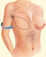 Tissue can be taken from the back and tunneled to the front of the chest wall to support the reconstructed breast.