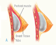 Breast implants can be placed above or beneath the pectoral muscle.