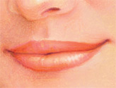 Soft tissue augmentation of the lips can enhance lip fullness and raise or define the cupids bow or vermillion border.