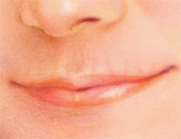 The lips can become thinner or flatter over time.