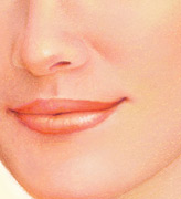After treatment, the skin around the mouth area appears smoother and tauter.