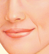 Years of squinting, smiling and other facial muscle movements can lead to lines and wrinkles around the mouth and nose.