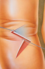 Using Z-plasty, the scar is removed and several incisions are made on each side, creating small triangular flaps of skin. Then the flaps are rearranged and interlocked to cover the affected area.