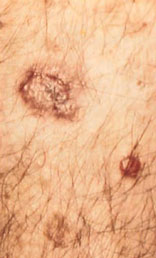 Squamous cell carcinoma may begin as a red, scaly patch, a group of crusted nodules, or a sore that doesn't heal.
